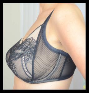 ce7665ffaa8ff The Omega Breast Shape - La Bella Coppia Lingerie